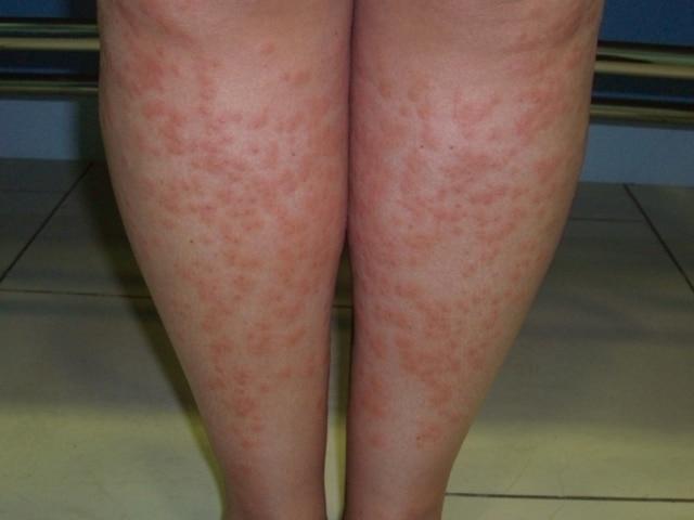 posible efecto secundario de depilacion